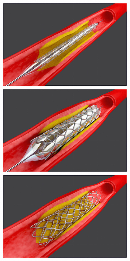 Balloon angioplasty procedure with placing a stent